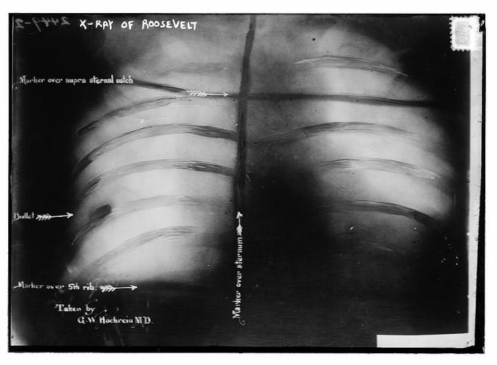 TR x-ray